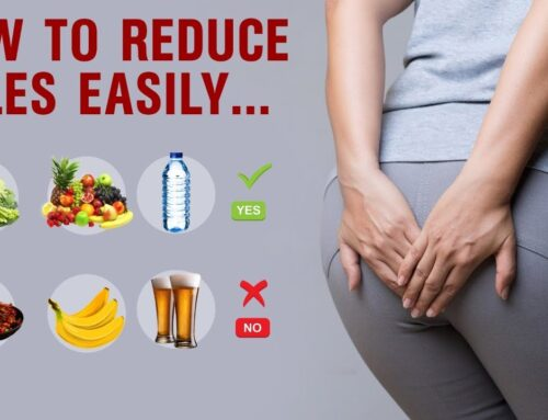 How to reduce piles Naturally || how to reduce piles pain